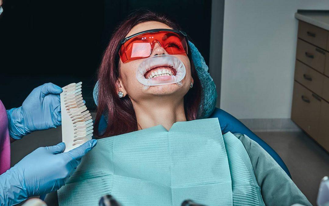dientes-blancos-alicante